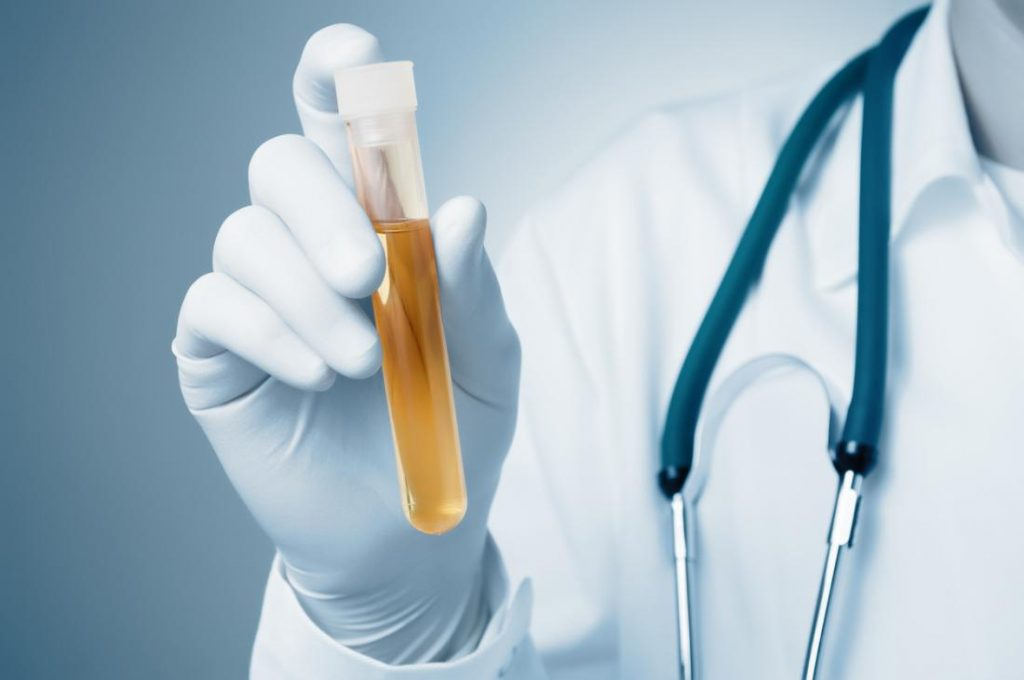 Where Can I Buy Synthetic Urine In Stores- Best Place to Buy Fake Urine
